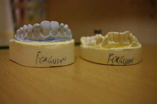 Dental cast Stuart Ferguson